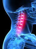 Neon neck pain