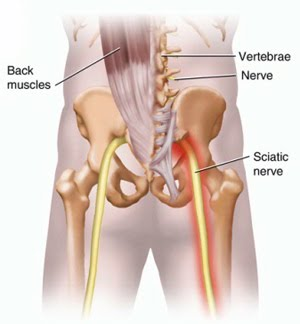 Sciatica Treatment South Coast Spine Center