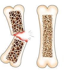 OSTEOFACTURE