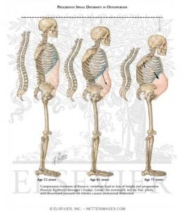 San Diego Osteoporosis in Men